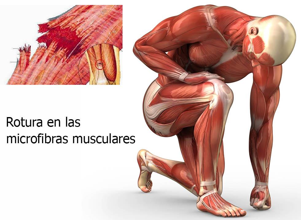 Rotura de las microfibras musculares producida por las agujetas