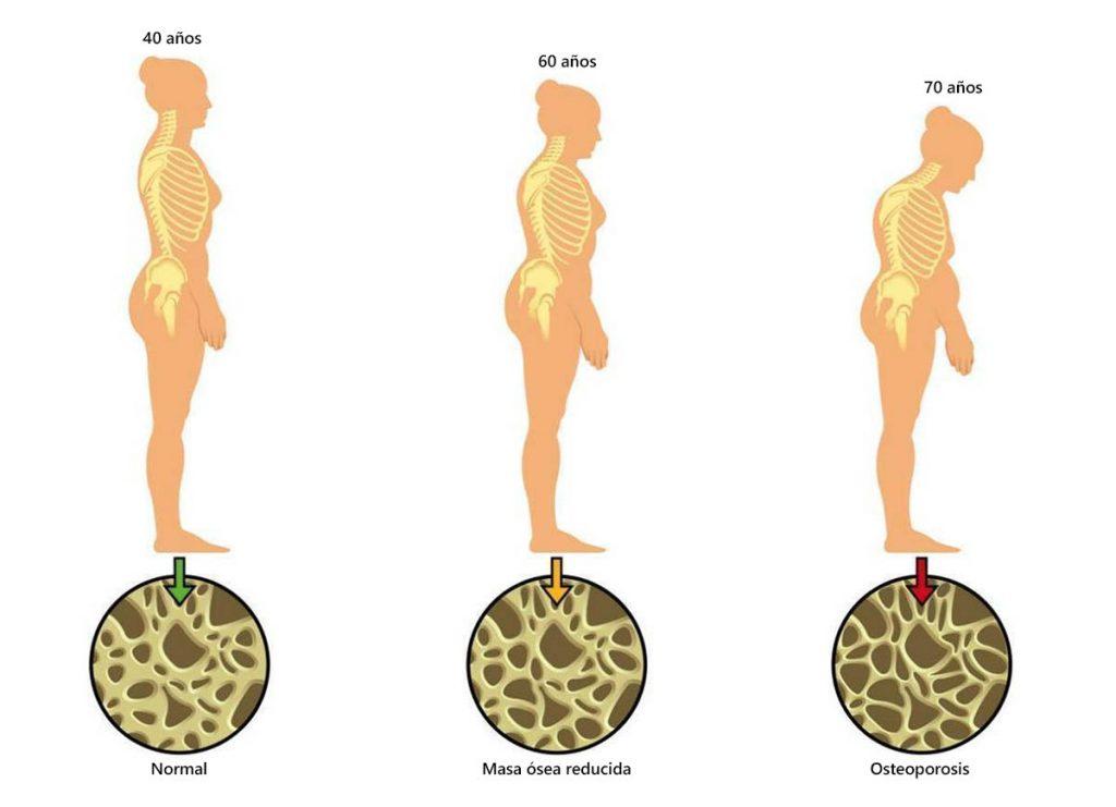 Desgaste de los huesos con la edad